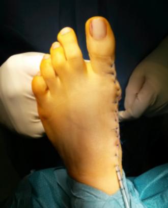 Operative Therapien
